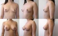 breastaug_1
