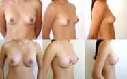 breastaug_2