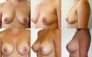 breastaug_5