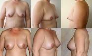 breastaug_7