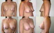 breastaug_9