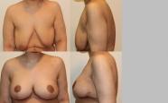 breastlift_1