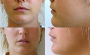 Lips Patient 1