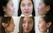Rhinoplasty Patient 12